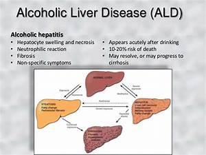 Fatty Liver Causes Symptoms Treatment Fatty Liver | Autos Post