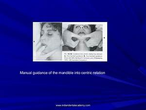 Functional Malocclusion   Certified Fixed Orthodontic