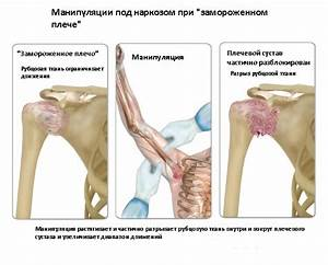 Остеохондроз на стопе лечение