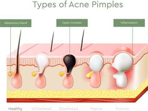 what type of acne do you have types of acne explained