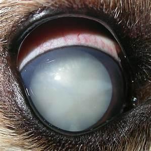 Cataract - Bing images