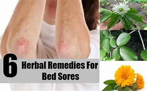 6 effective herbal remedies for bed sores how to treat for Best bed for bed sores