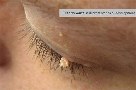 how to if a wart freeze is working stages of wart