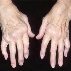 osteoarthritis, osteoarthritis knee brace, osteoarthritis pain relief ... Osteoarthritis
