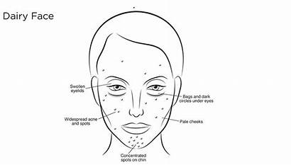 Face Dairy Mapping Diet Affects Skin Gluten