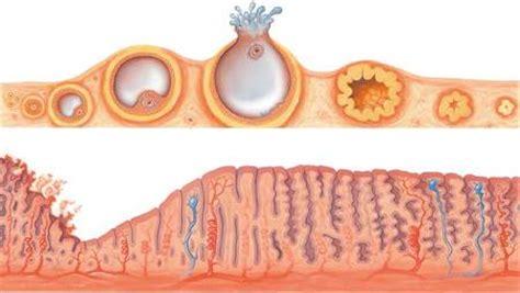 painful menstruation  dysmenorrhea medchrome