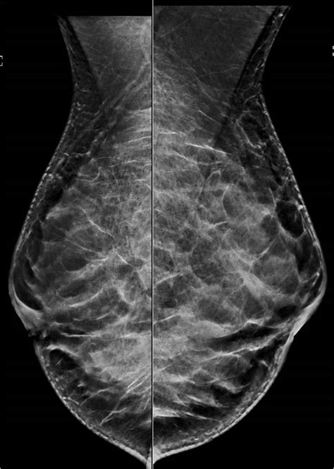 Image IQ: Screening Ultrasound for Dense Breasts