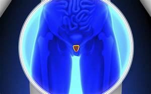 Таблетки и антибиотики от простатита