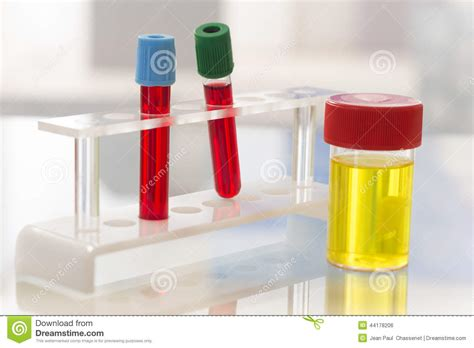 laboratorio test laboratory sterile urine sle and blood test stock