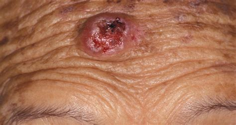 """The Abcde Signs Of A """"changing Mole"""""""