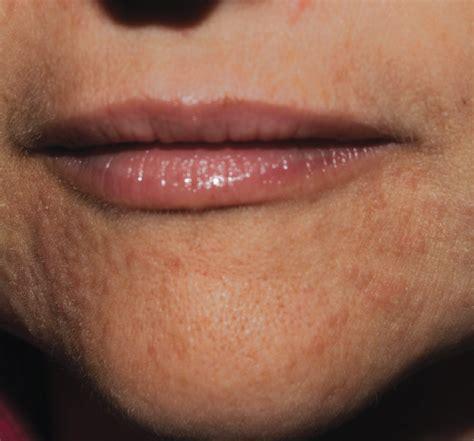 womans perioral rash