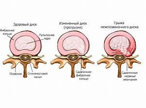 Лечение остеохондроза поясничного отдела позвоночника народными методами