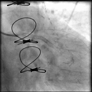 Non-longitudinal Stent Deformation - Case 1