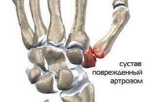 Артроз коленного сустава лечение ферматроном