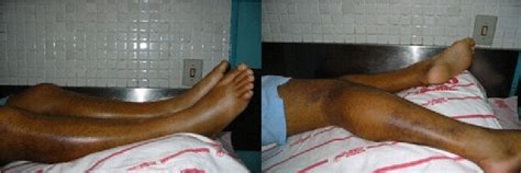 swollen legs   patient  rhabdomyolysis