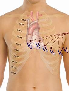 File Precordial Leads In Ecg Svg
