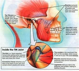 The Symptoms Of Tmj Are Magnified For A Person Also Living