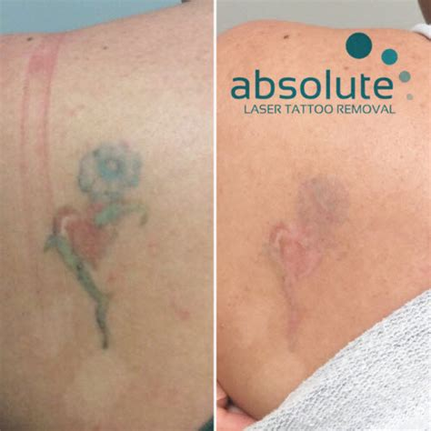 gallery absolute laser tattoo removal san diego ca