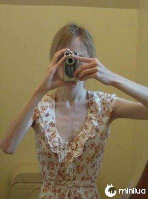 os males da anorexia  minilua