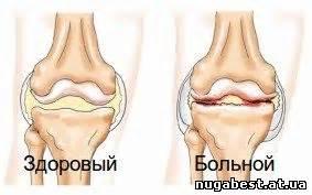 Как лечить боли в голеностопных суставах