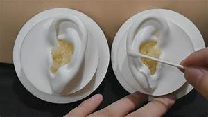 Asmr Your Ears Are Full Of Earwax 7   Popping