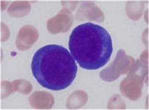 IFBLS e-Learning Hematology