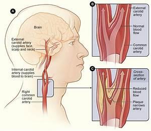 Cartoid Artery Disease — Interventional Radiology Consultants