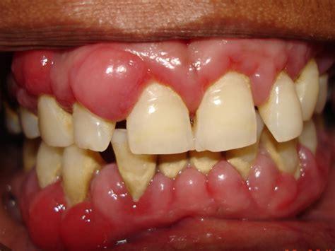 plaque m騁al cuisine periodontitis