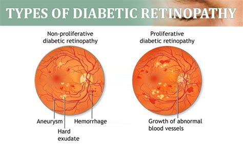 types  classification  diabetic retinopathy