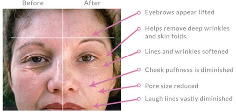 Microcurrent and Radio Frequency(RF)/High frequency Skin