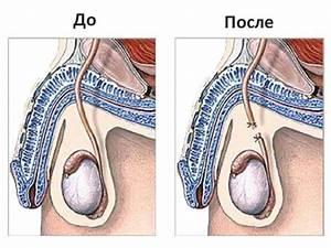 Луковая шелуха от хронического простатита