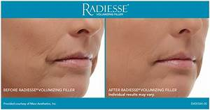 Pdf fillers for face