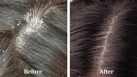 Get Rid of Dandruff With This Natural Home Remedies - YouTube