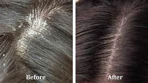 Get Rid Of Dandruff With This Natural Home Remedies