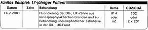 Goz Zahnarzt Abrechnung : abrechnung nach bema und goz fluoridanwendung und fissurenversiegelung eine gegen berstellung ~ Themetempest.com Abrechnung