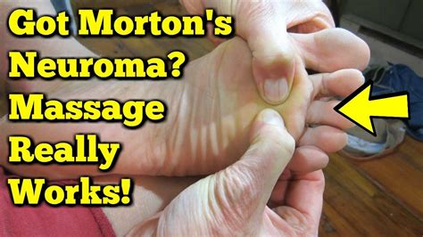 mortons neuroma massage exercises  avoid surgery
