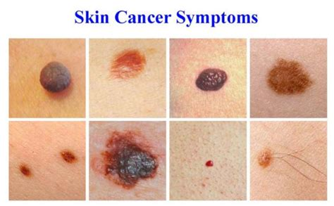 Effectively Dealing With Skin Cancer  Victory Over Cancer. Minimum Amount To Open A Bank Account. Free Network Monitoring Barber School Orlando. How To Sell Products On The Internet. Insurance Lead Services Solarwinds Orion Maps. Applications For Colleges What Is Polydactyly. Theatre Schools In New York Adams Family Car. Life Insurance For Over 50s Honda Pilot Suv. Master In Paralegal Studies Debt Free Relief