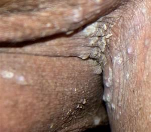 Кожные заболевания ногтей грибок