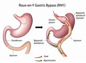 recepten voor na gastric bypass