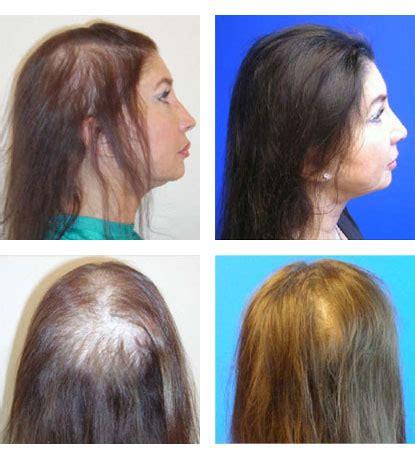 Laser Hair Restoration in Santa Barbara