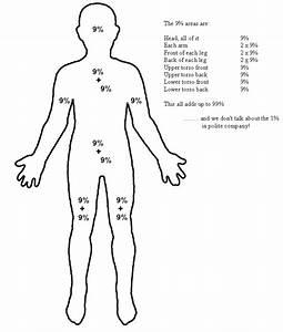 Rule Of 9s Diagram
