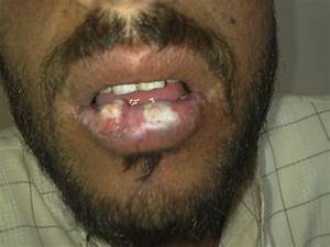 Medical Pictures Info – Angular Cheilitis