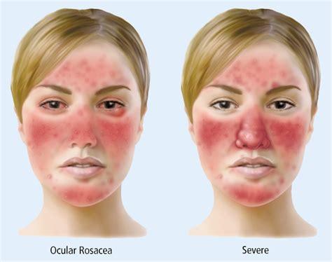 internal acne treatments