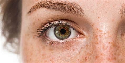 eye exterior