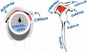 Shoulder Impingement Rotator Cuff Strengthening Exercises