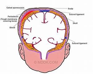 Cephalohematoma - Definition, Causes, Symptoms, Pictures ...