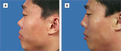 saddle nose correction jama plastic surgery the
