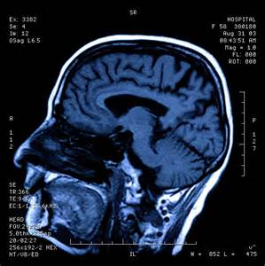 cat scan of brain psych 354 study guide 2013 14 instructor