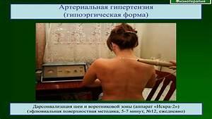 Принципы лечение гипертонической болезни