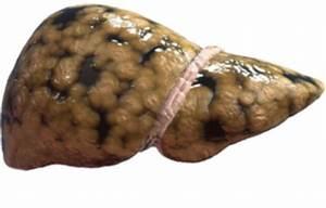Препараты против жирового гепатоза печени